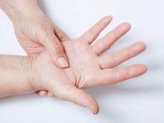 Что такое дисгидроз рук и как его вылечить?