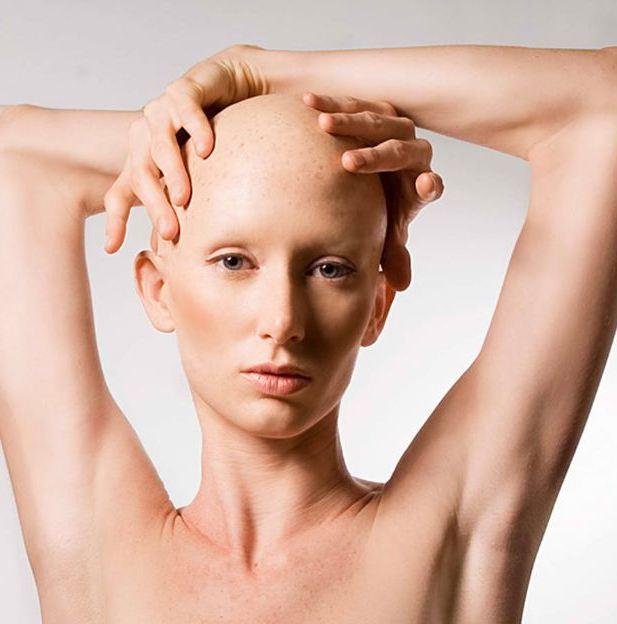 Себорея выпадение волос народными средствами