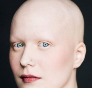 девушка без волос, бровей и ресниц