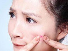 Прыщи на щеках у женщин— откуда и как избавиться?
