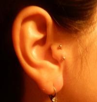 Прокол уха для похудения в пензе