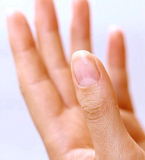 Как лечить нарывающий ноготь на руке