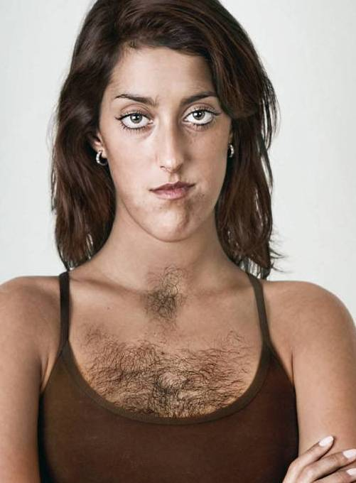 Почему растут волосы на груди у женщины