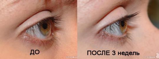 Xlash фото до и после