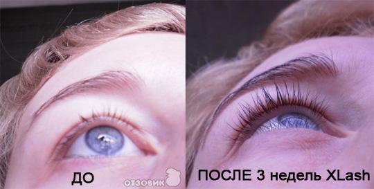 Икс Лаш фото до и после