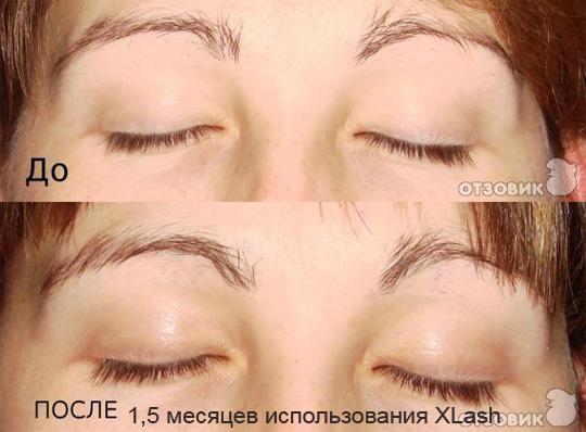 Xlash фото-отзыв до и после